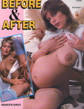 preg before and after 03